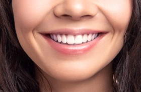 close-up of beautiful smile after gum contouring in Woodbridge