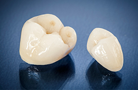 Dental crowns prior to placement