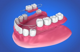 Illustration of partial denture for lower dental arch