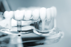 Close-up photo of three-unit implant-supported dental bridge model