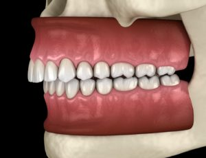 Illustration of overbite, a bite problem that Invisalign in Woodbridge can fix